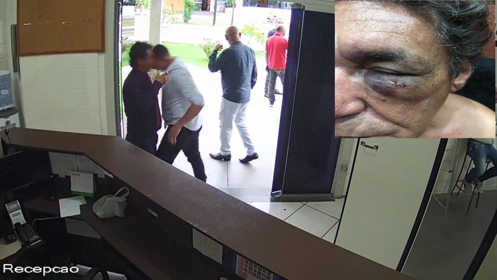 Em Birigui, vereador agride advogado com cabeçada