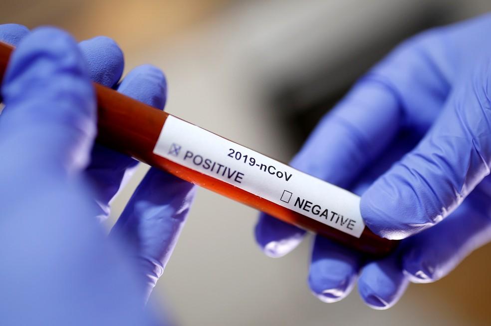 Coronavírus: região tem 553 casos suspeitos e 11 confirmados