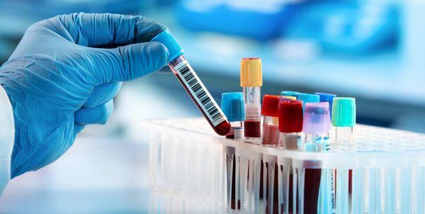 MPF quer divulgação de resultados de casos suspeitos de coronavírus em Jales